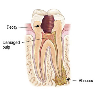 Infected Tooth Illustration