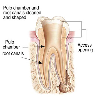 Cleaning Root Canals Illustration